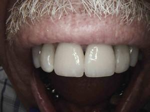 dental crown kansas city