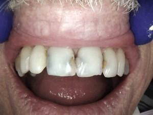 dental crowns kansas city