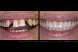 dental bridge services kansas city mo