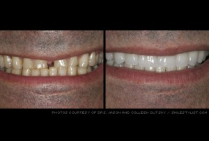 dental veneers kansas city