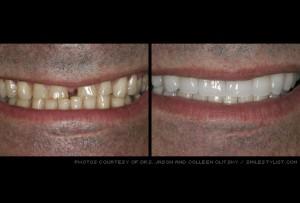 dental veneers kansas city